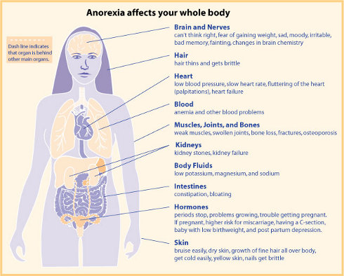 anorexia - info